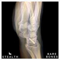 Stealth - Bare Bones
