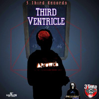 Aprowch - Third Ventricle (Explicit)