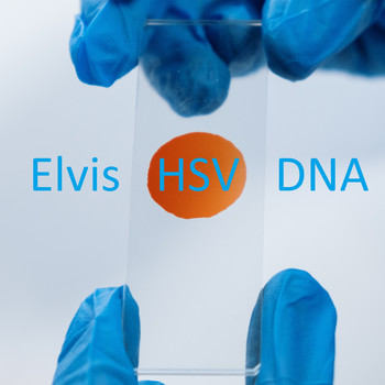 Elvis - HSV DNA